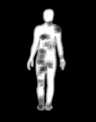 Drawing of Medical Intuitive Health Scan showing health scan blocks on the energy field